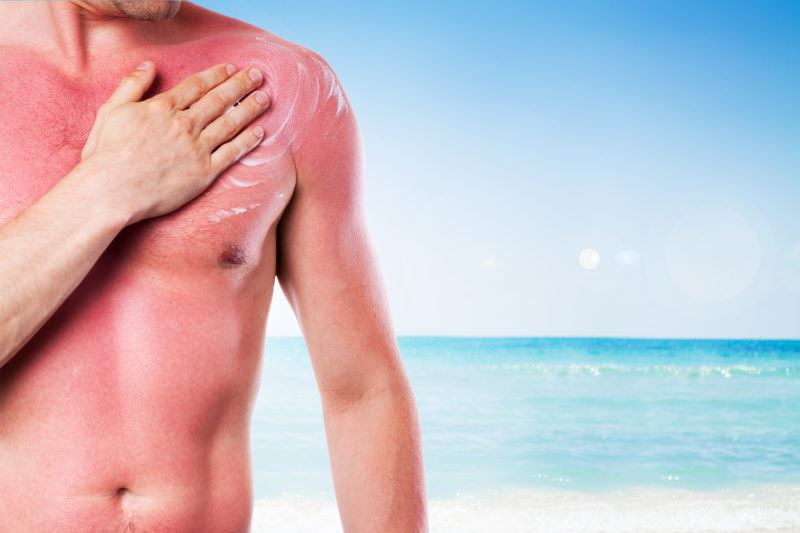 5 Ways to Maintain Healthy Skin, After Sun Exposure